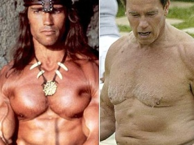 Male Cosmetic Surgery on the rise